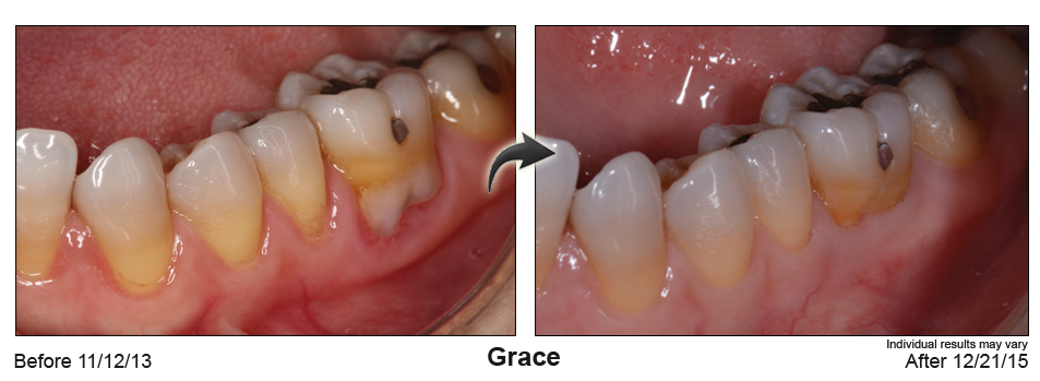 fix gum recession Virginia Beach