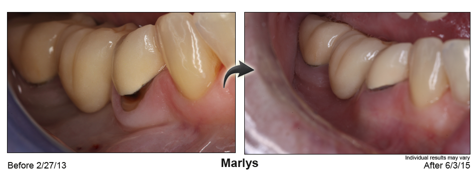 fix receding gums Virginia Beach